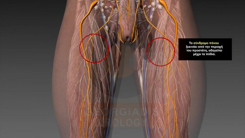 Συμτπώματα Προστατίτιδας - Χρόνιου Πυελικού Άλγους - Στυτική Δυσλειτουργία | Georgiadis Urology