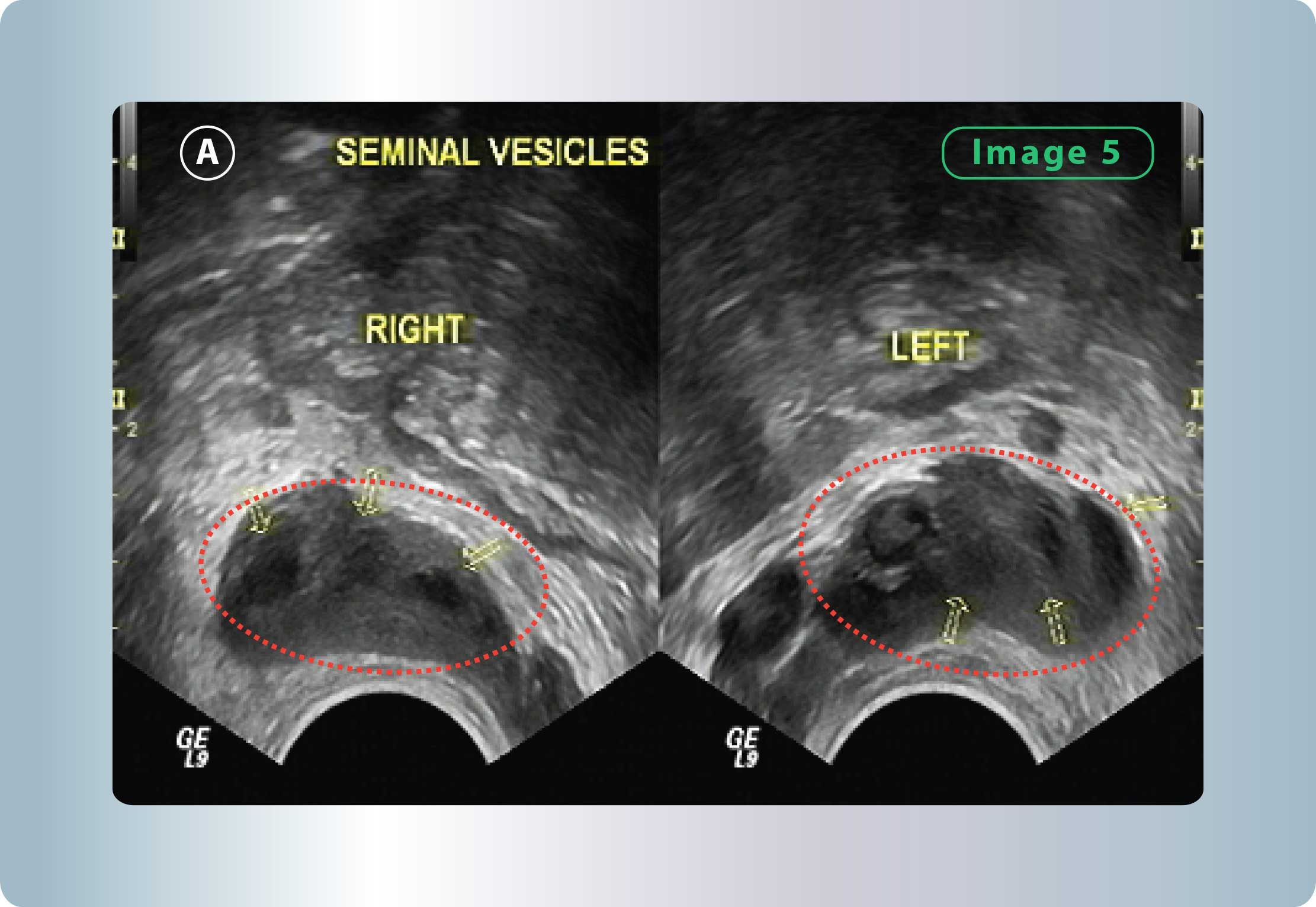 Seminal Vesiculitis | Georgiadis Urology
