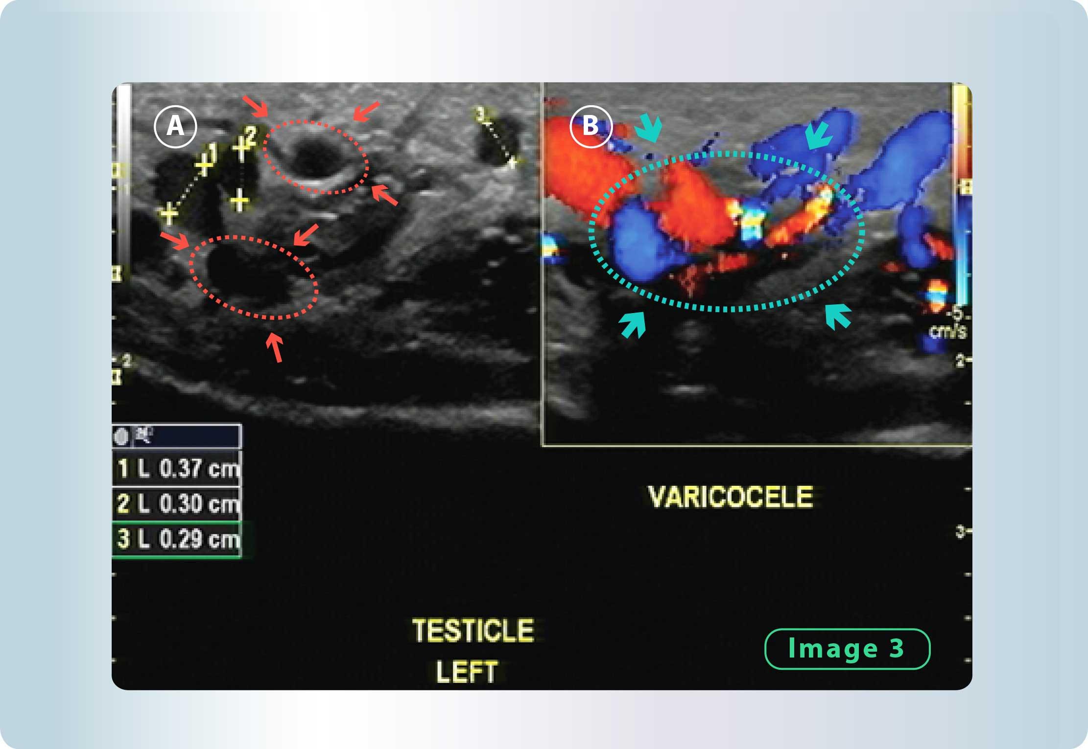 Varicocle (Dilated Veins) | Georgiadis Urology