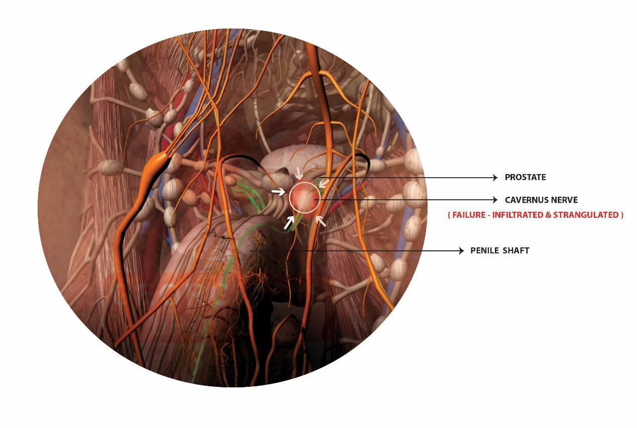 Cavernous nerve inflammatory infiltration | Georgiadis Urology