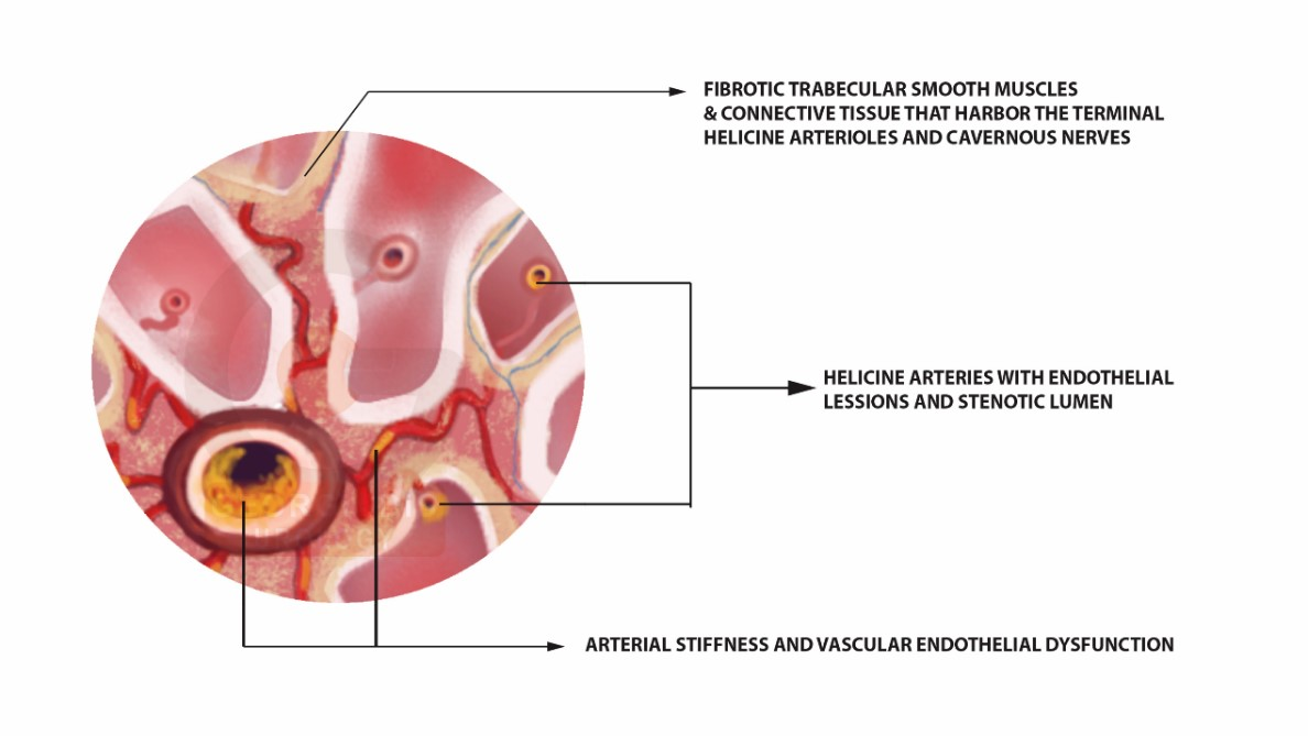 Erectile Tissue changes due to Chronic Prostatitis | Georgiadis Urology.