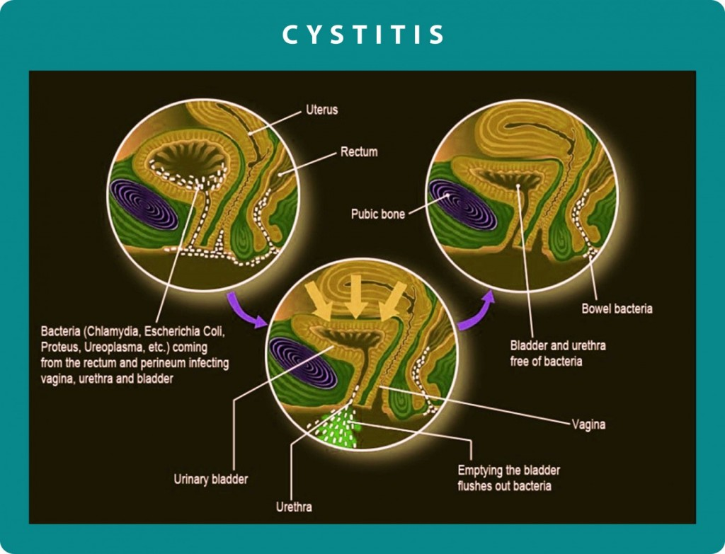 Chronic Cystitis | Georgiadis Urology