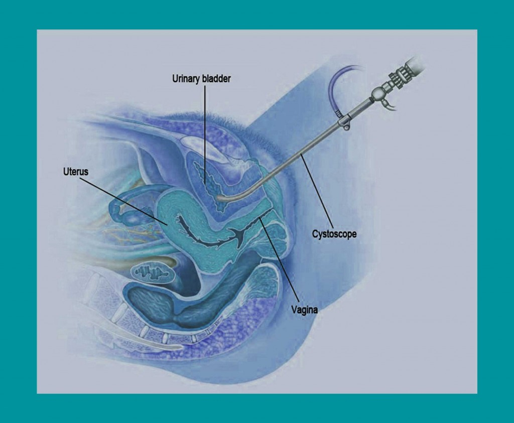 Cystoscopy for Cystitis | Georgiadis Urology