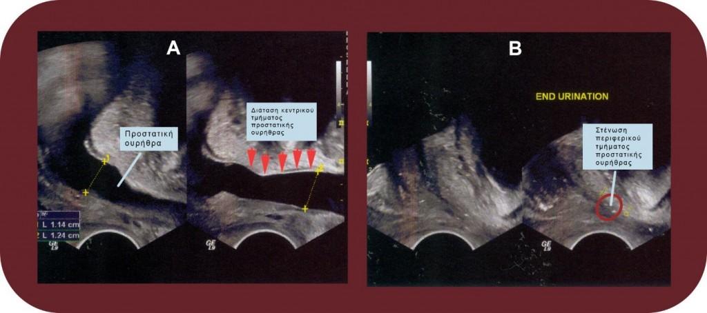 διορθικό υπερηχογράφημα - διάγνωση οξείας προστατίτιδας - georgiadis urology