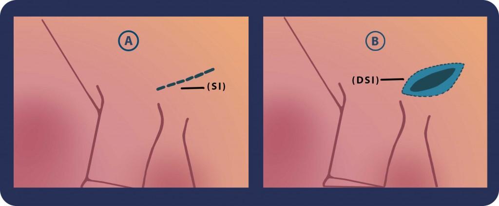 Εγχείρηση κιρσοκήλης | Georgiadis Urology