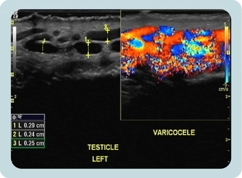 Υπερηχογράφημα κιρσοκήλης | Georgiadis Urology
