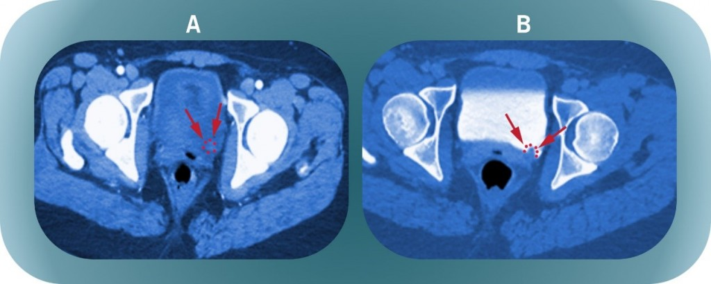 CT Scan Cystitis - Georgiadis Urology