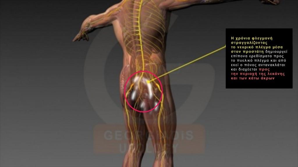 Pelvic Pain Syndrom - Χρόνιο Πυελικό Άλγος - Δρ. Παύλος Γεωργιάδης