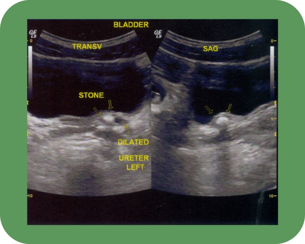 Testicle ultrasound - Georgiadis Urology