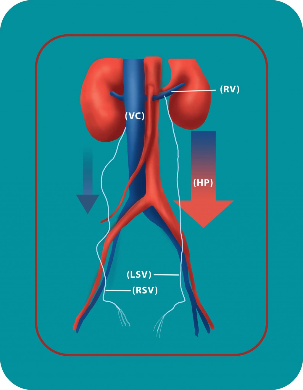 Vein pressure varicocele | Georgiadis Urology