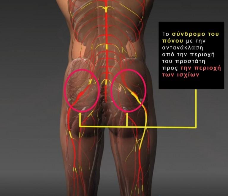 Συμπτώματα Προστατίτιδας - Χρόνιο Πυελικό Άλγος | Georgiadis Urology