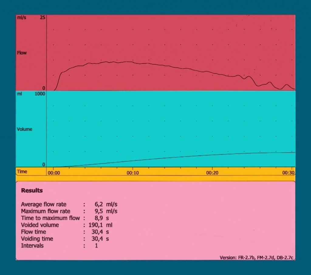 Uroflowmetry Cystitis | Georgiadis Urology