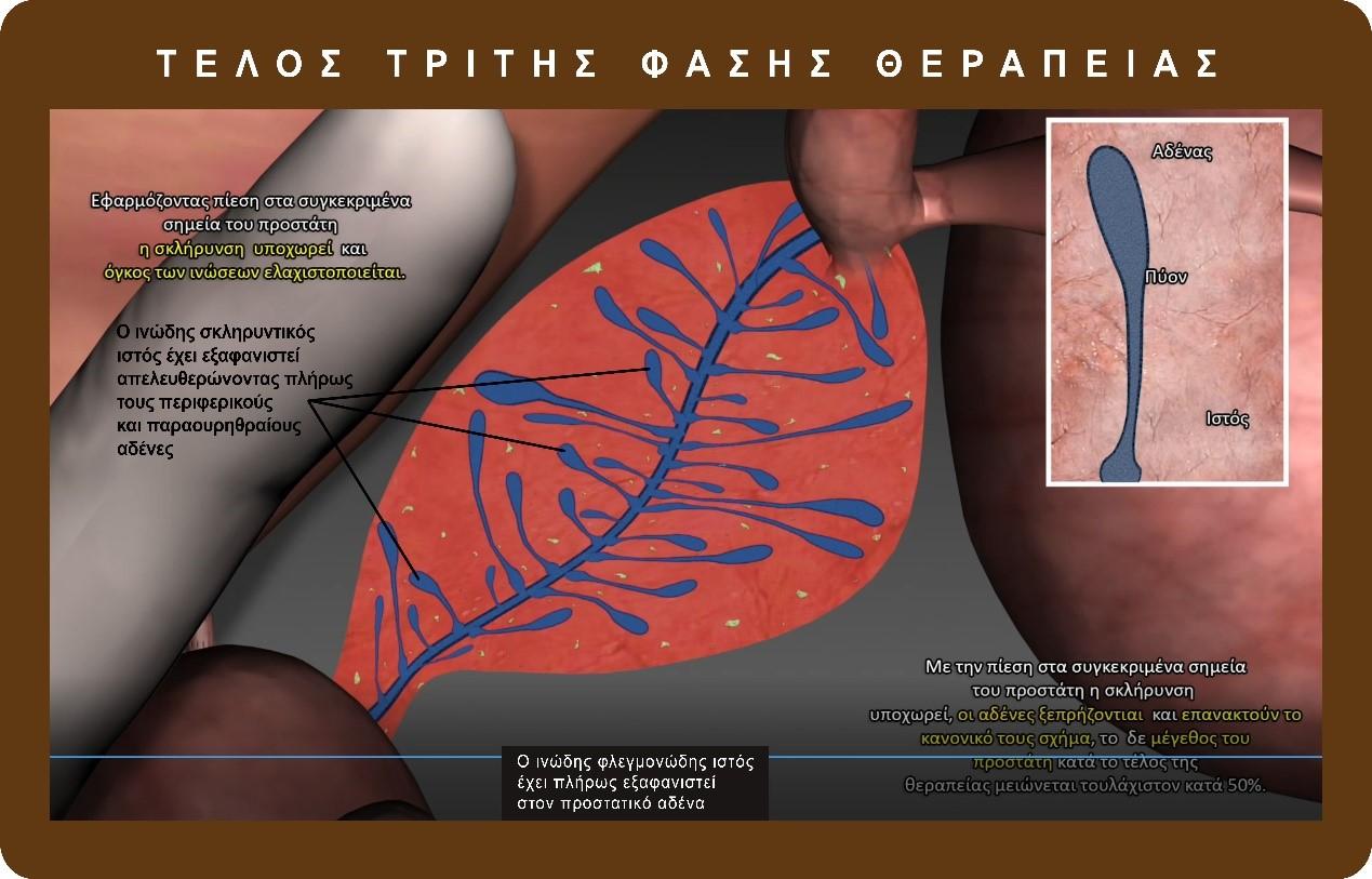 αποτελεσματική θεραπεία προστατίτιδας - dr. pavlos georgiadis