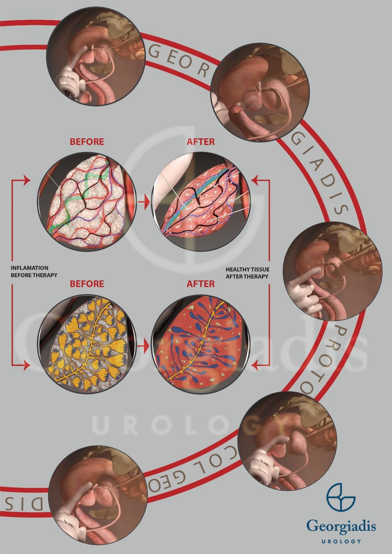 θεραπεία στυτικής δυσλειτουργίας - georgiadis urology