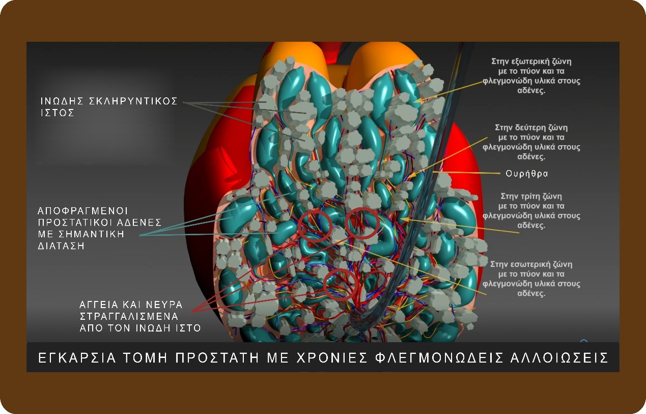 θεραπεία χρόνιου πυελικού άλγους - Δρ. Γεωργιάδης Παύλος