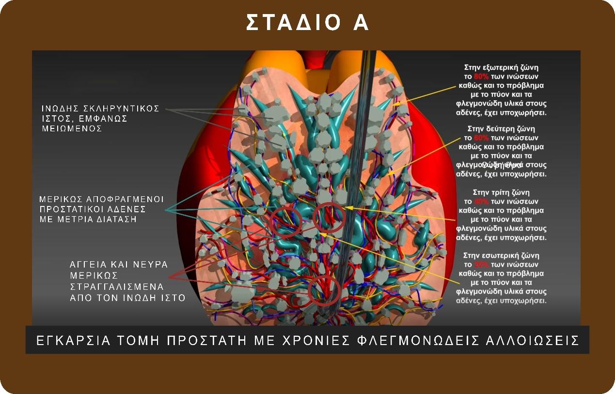 θεραπεία χρόνιου πυελικού άλγους - προστατίτιδας - Δρ. Γεωργιάδης Παύλος