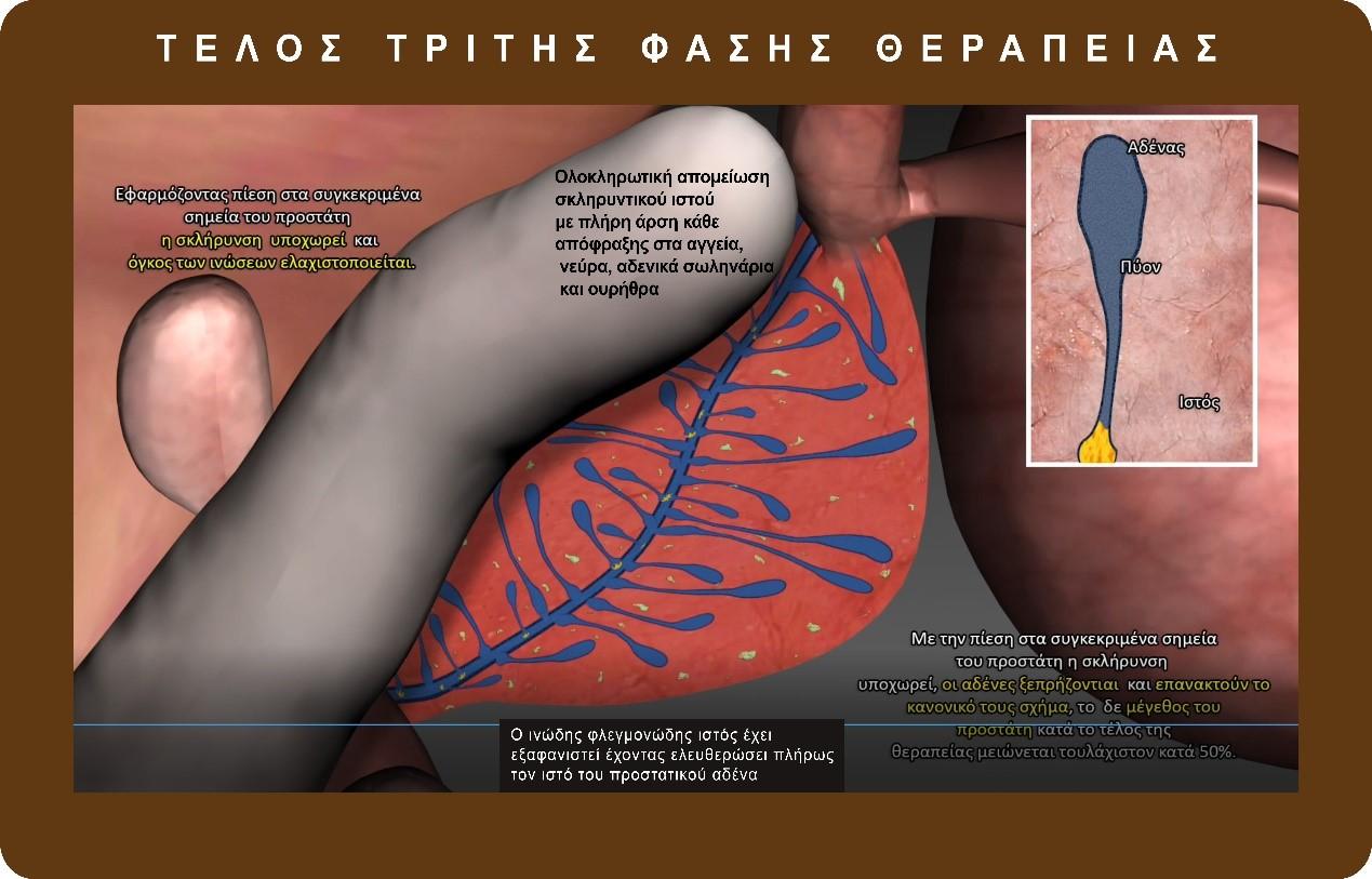 προστατίτιδα - θεραπεία - δρ. παύλος γεωργιάδης