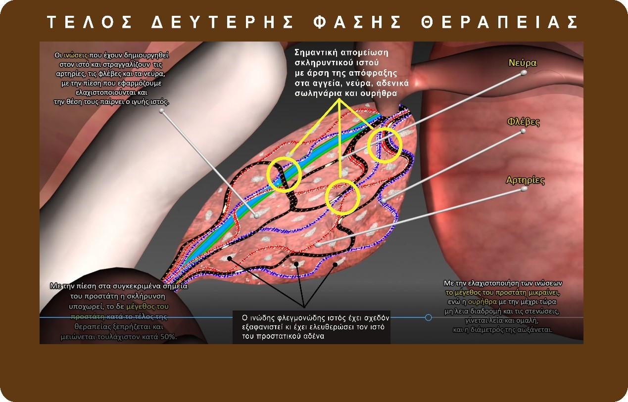 προστατίτιδα θεραπεία - georgiadis urology