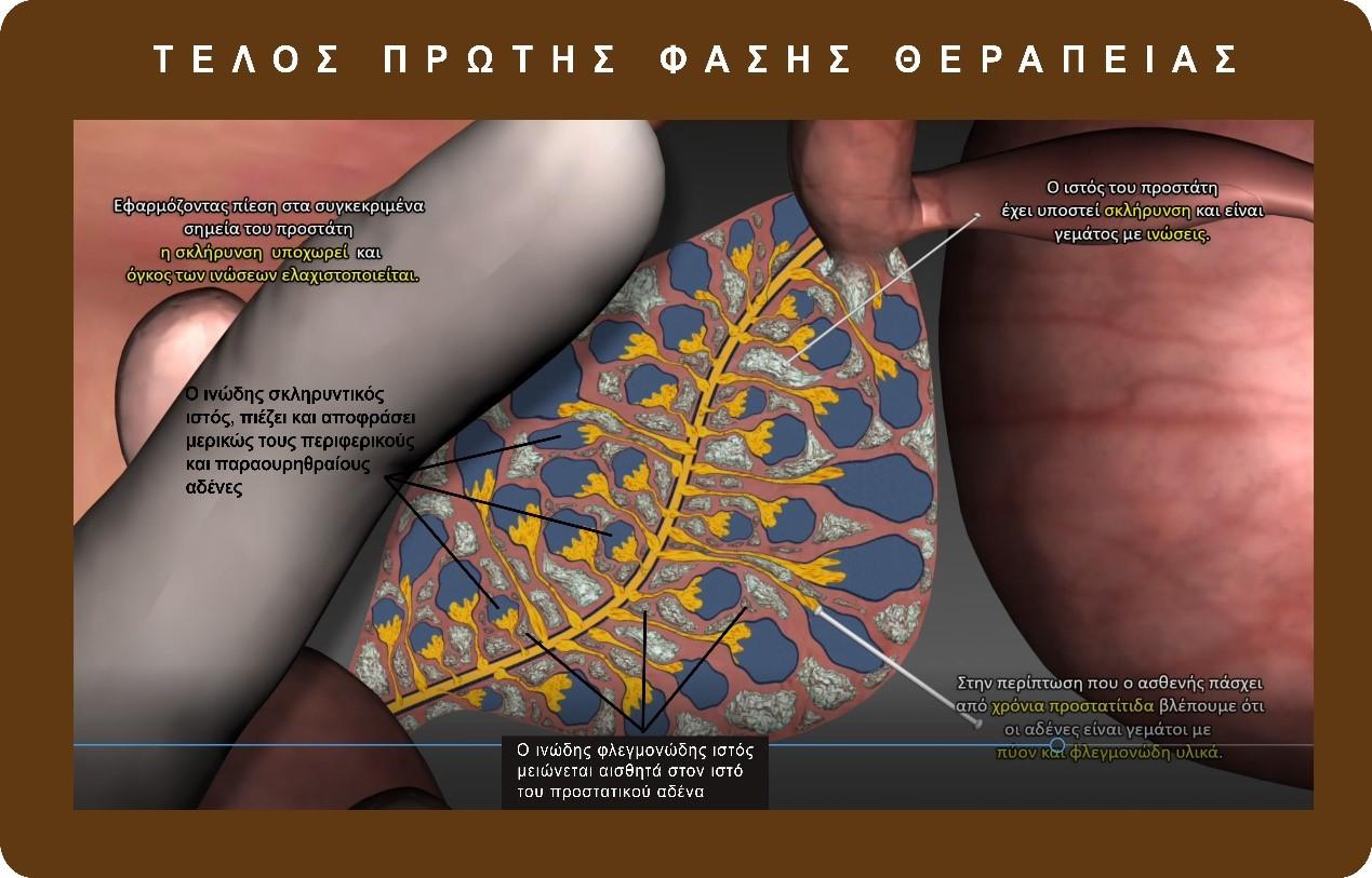 πως θεραπεύεται η χρόνια προστατίτιδα; - georgiadis urology