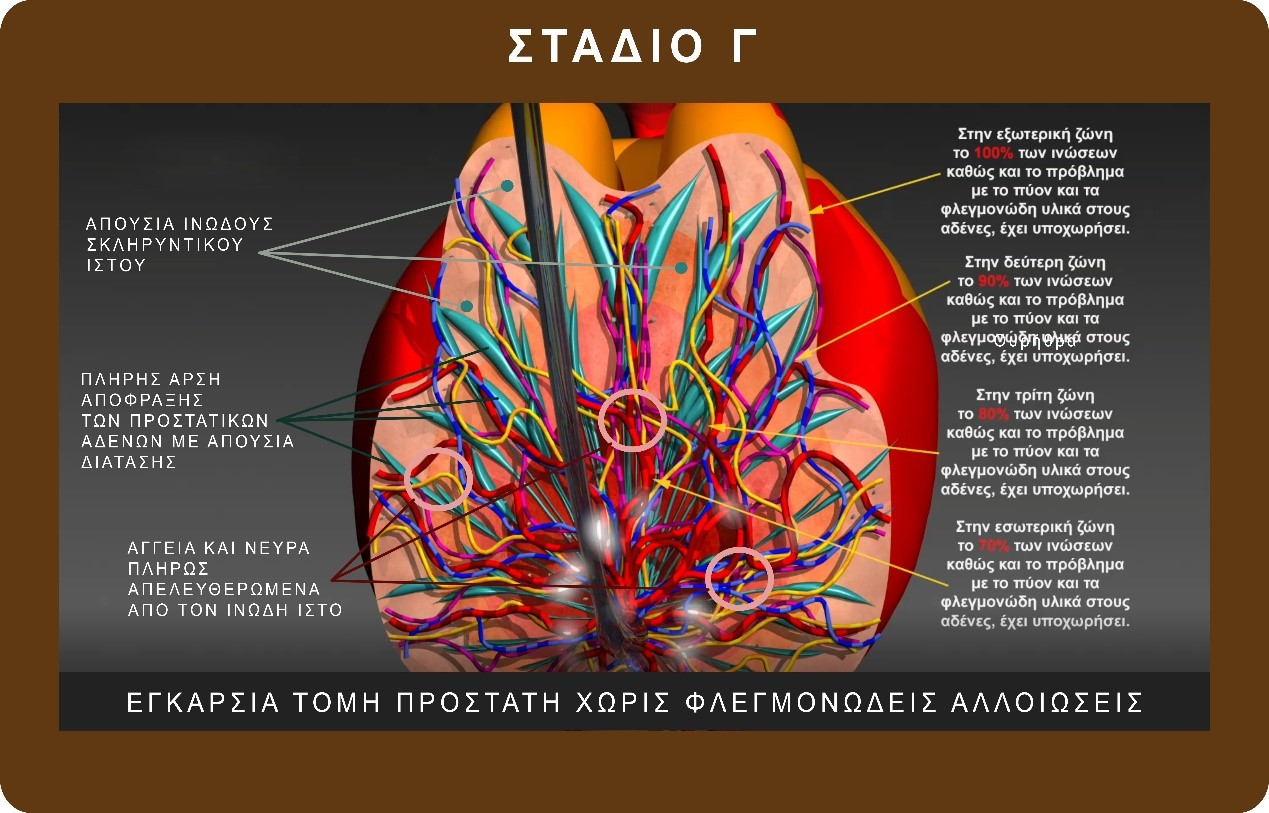 how to cure prostatitis - georgiadis urology